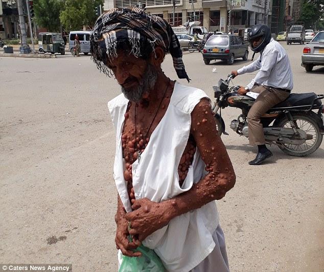 巴基斯坦男子身患泡泡状肿瘤遭歧视被迫隐居