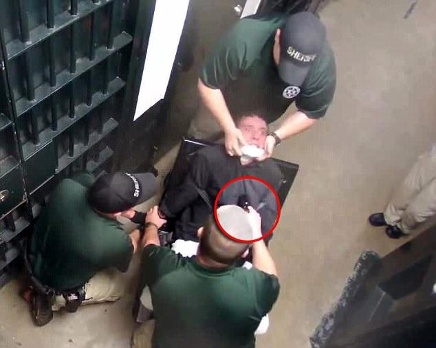 美18岁青年监狱中被绑椅子上电击 全身烧伤40余处