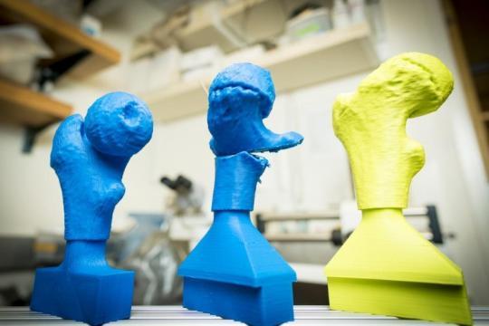 髋关节3D打印模型使手术时间缩短25%