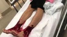 """澳洲16岁少年被""""食肉虫""""攻击 双脚血肉模糊"""