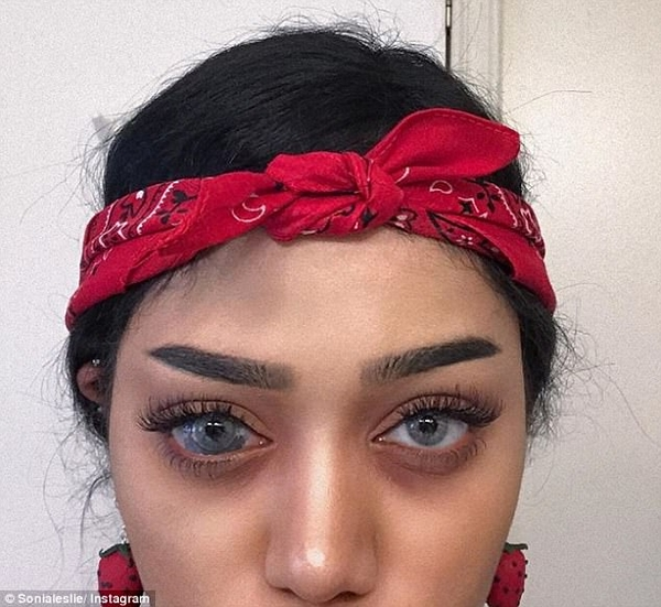美网红瞳孔胎记被指是病 强烈回击网友质疑