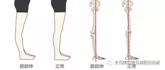 脚掌骨的结构图
