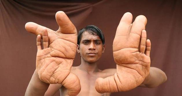 印度12岁男孩患罕见怪病 手掌长似芭蕉叶