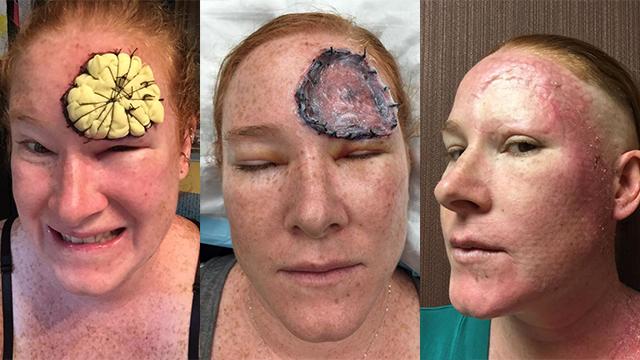 触目惊心!美国妈妈与黑色素瘤抗争