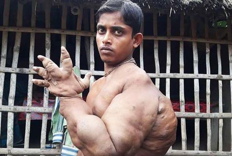 孟加拉男孩患怪病 手指粗壮似熊掌