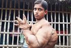 孟加拉男孩手粗壮似熊掌