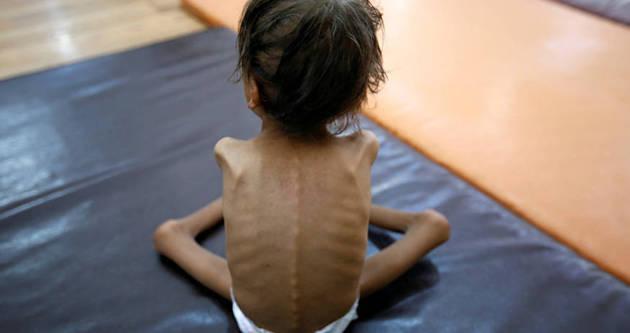 """也门儿童患营养不良瘦成""""皮包骨"""" 触目惊心"""
