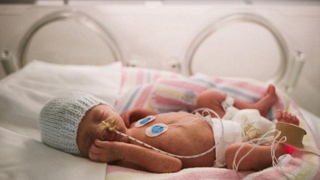 澳大利亚母亲记录早产儿子艰难求生过程