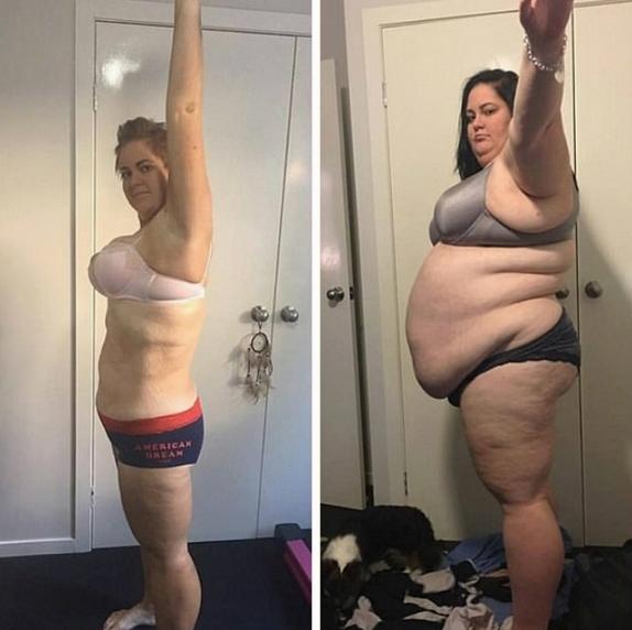 澳女子肥胖过度被告知活不过40岁怒减115公斤
