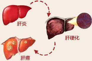 从肝炎到肝癌只需三步 高危人群每三个月查一次