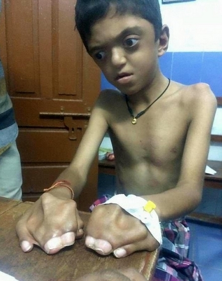 印男孩患罕见遗传病 手指脚趾粘连智力出现障碍