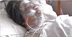 七旬老母遭亲生儿泼硫酸 脸部毁容双目失明