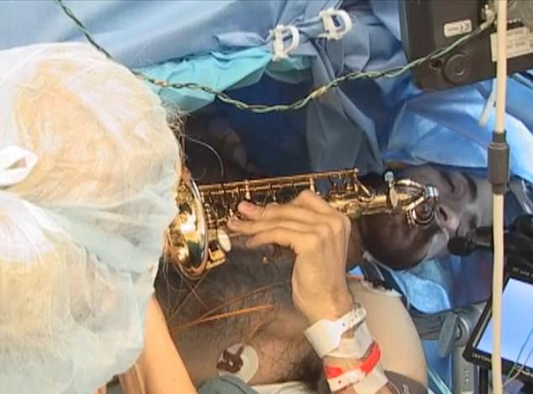 美音乐教师做开颅手术 全程清醒演奏萨克斯