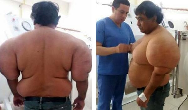 秘鲁潜水员不幸患上潜水病身体肿大变形严重
