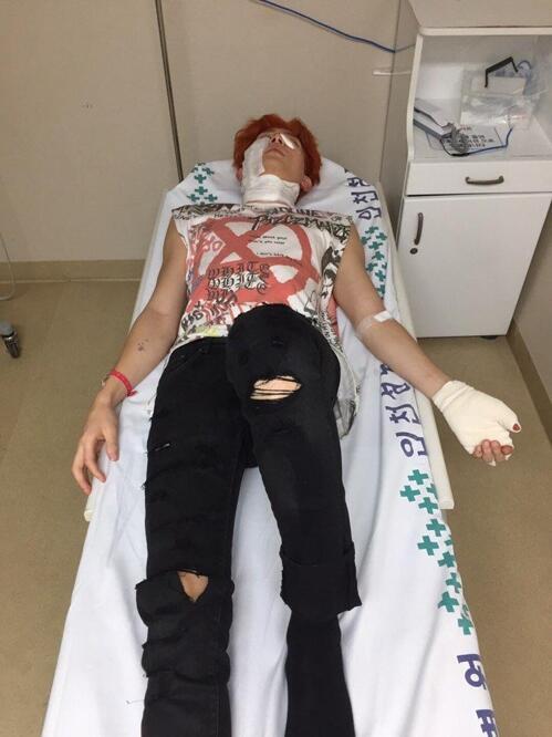 韩男团U-KISS成员箕燮拍MV时发生爆炸 遭二度烧伤