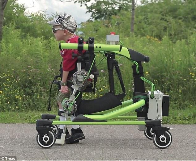 加拿大研发机械外骨骼装置 可助残疾儿童站立走路