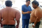 秘鲁男子患潜水病身体肿大
