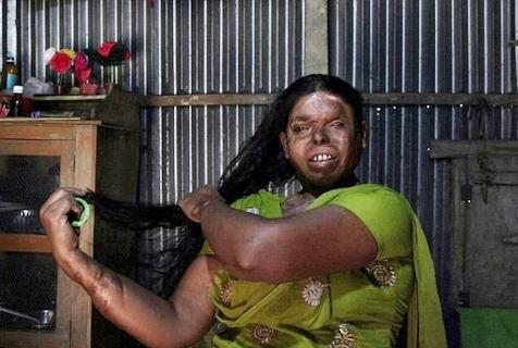 摄影师拍酸性液体暴力幸存者 疤痕交错