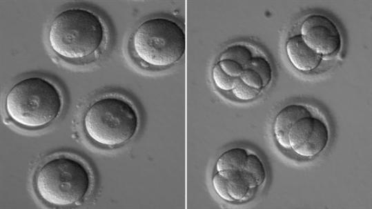 科学家质疑美国首批基因编辑人类胚胎