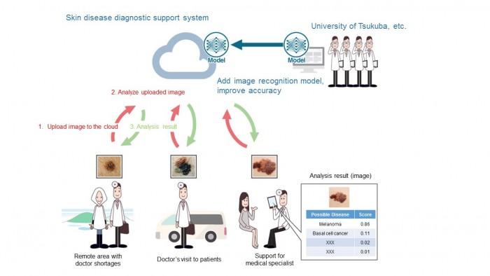 京瓷与日本筑波大学合作 用AI掌握皮肤癌特征