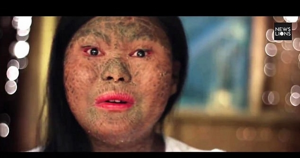 """菲律宾女子全身长满鳞屑被嘲笑为""""蛇皮女"""""""