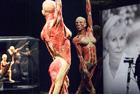 瑞士举办世界人体标本展