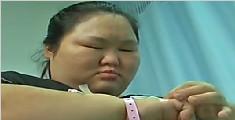 太胖了!武汉270斤胖妈生子 全程惊险累坏医生