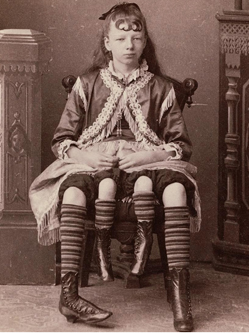 """图揭19世纪""""怪胎""""诡异神秘"""