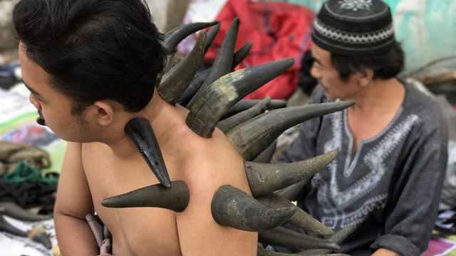 密集恐惧慎入!印尼医生用水牛角拔罐