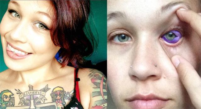 噩梦!加拿大女模做眼球文身致永久性损伤