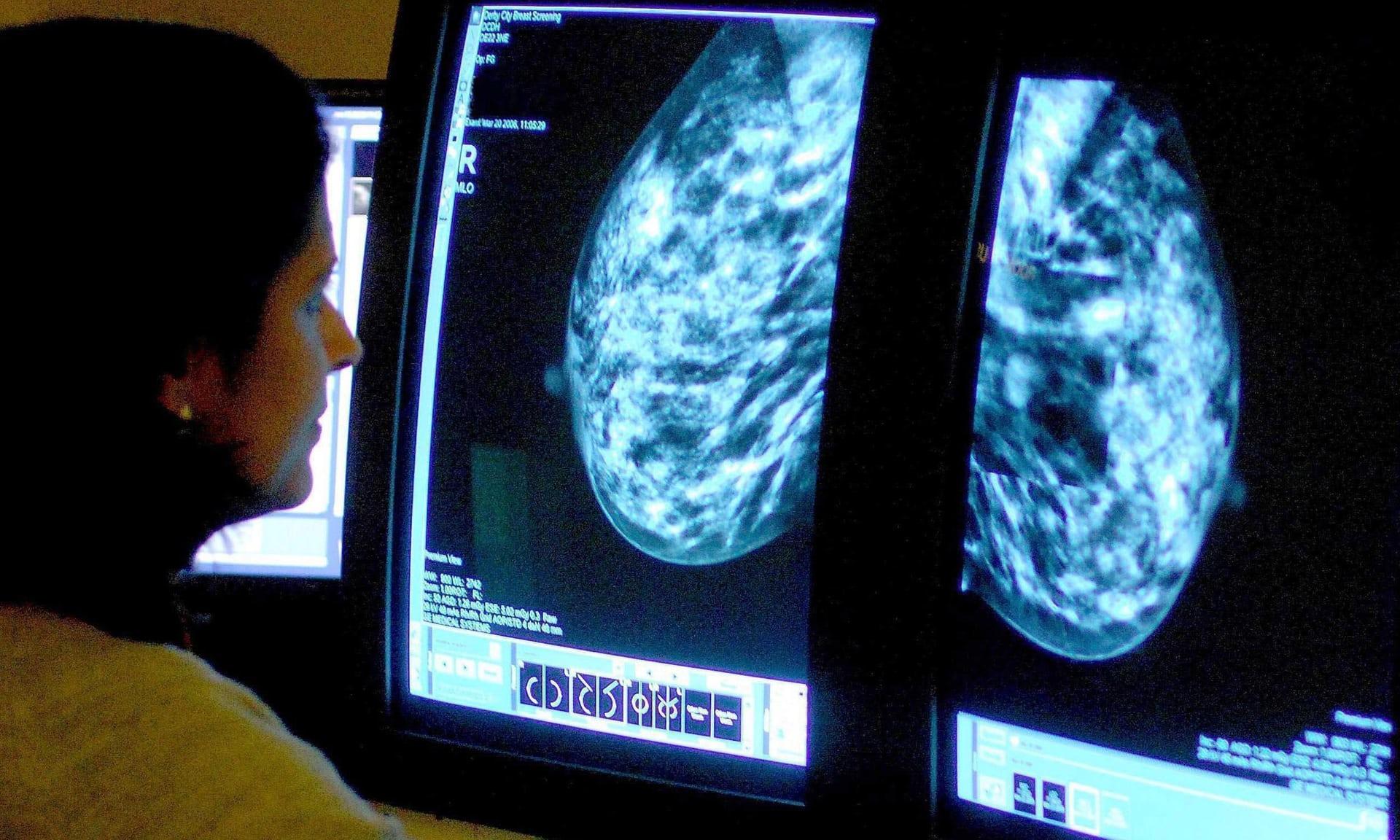 英国慈善机构:双磷酸盐或可降低乳腺癌死亡率