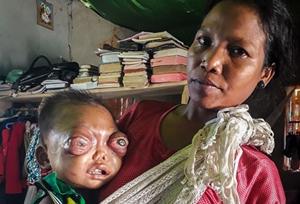 印2岁男童患罕见眼癌 眼球外凸似外星怪物