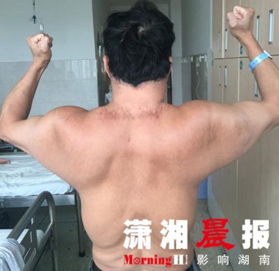 """46 岁男子日饮半斤酒 喝出河马脖变""""超人"""""""