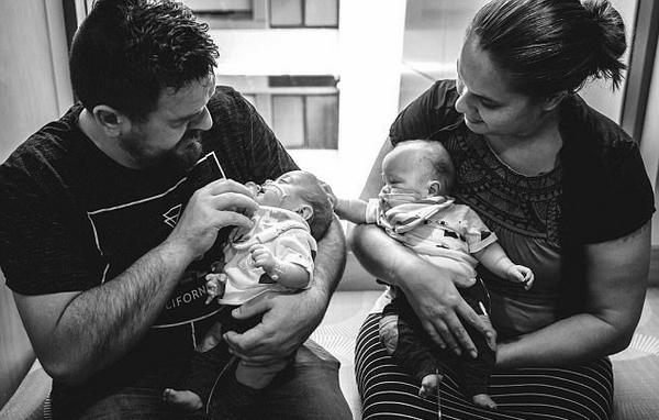 澳夫妇坚持治疗濒死早产双胞胎 奇迹生还