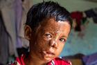 印度2岁男童被泼硫酸