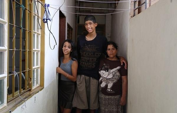 12岁巴西男孩患巨人症身高2.3米 冒风险手术治疗
