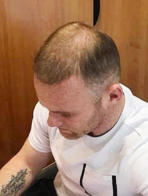 鲁尼32岁生日快乐 可惜3万镑的植发计划宣告失败