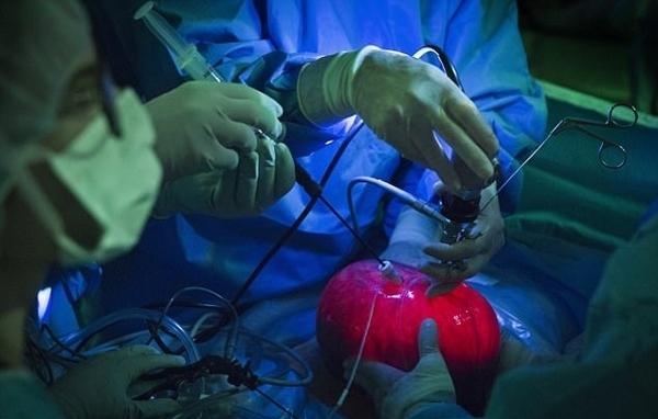 美医生为胎儿做脊椎裂手术或将造福上千患儿
