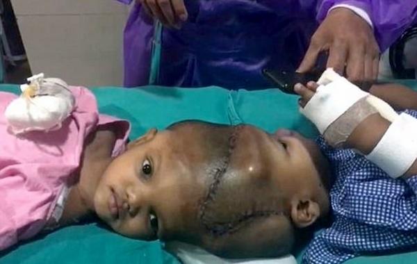 印度头部连体双胞胎分离手术成功 历经11小时