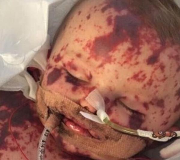 英10月大婴儿感染罕见脑膜炎四肢或被切除