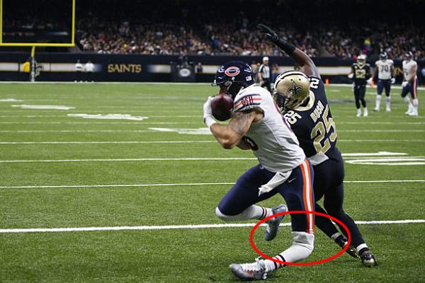惊悚!橄榄球运动员膝盖受伤腿部反折 当场送医