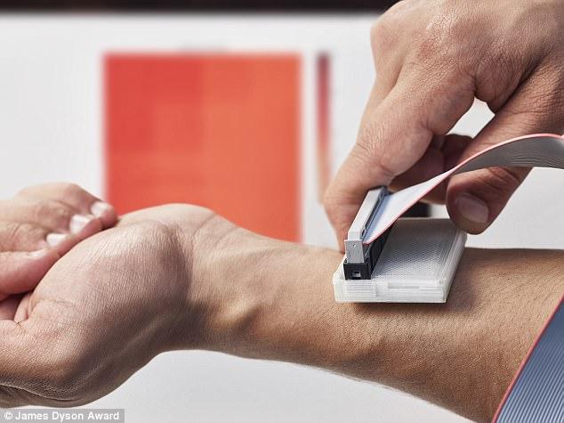 大学生研发皮肤癌检测器 赢得詹姆斯·戴森设计奖