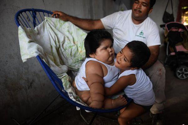 墨西哥10个月大婴儿重达56斤 随时有生命危险