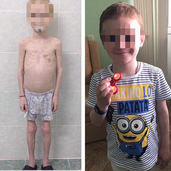 俄女子将养子饿到暴瘦骗取疾病补助供自己挥霍