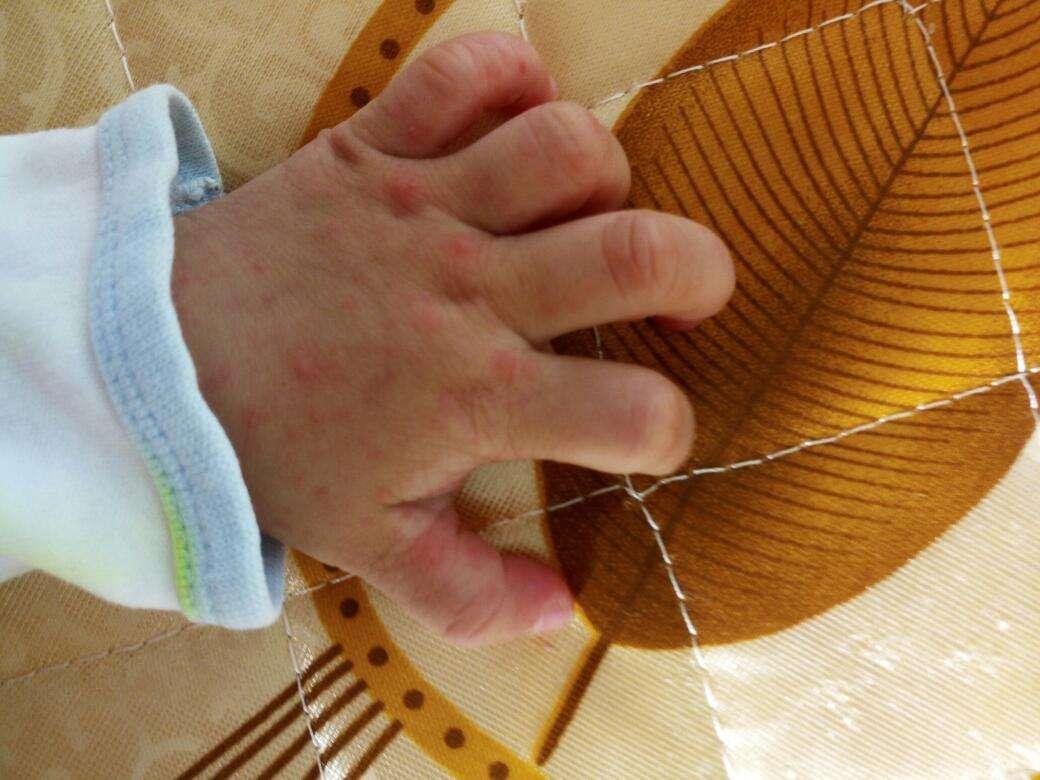 位居丙类传染病首位 《手足口病诊疗指南》再修订