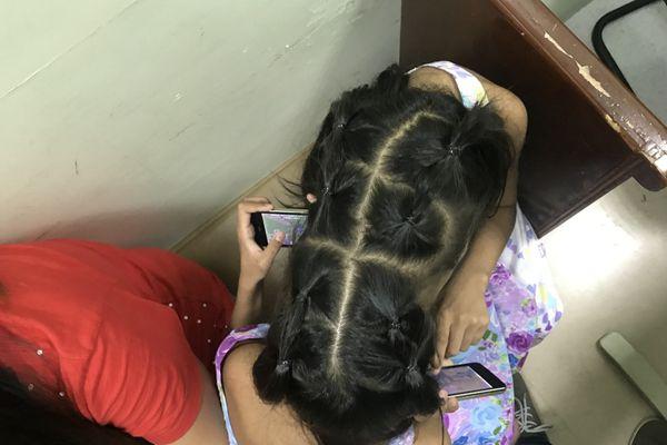菲律宾10岁连体双胞胎渴望分离手术 父母为高额手术费奔波
