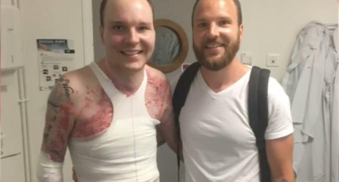 男子全身95%被烧伤 靠孪生兄弟捐赠皮肤起死回生