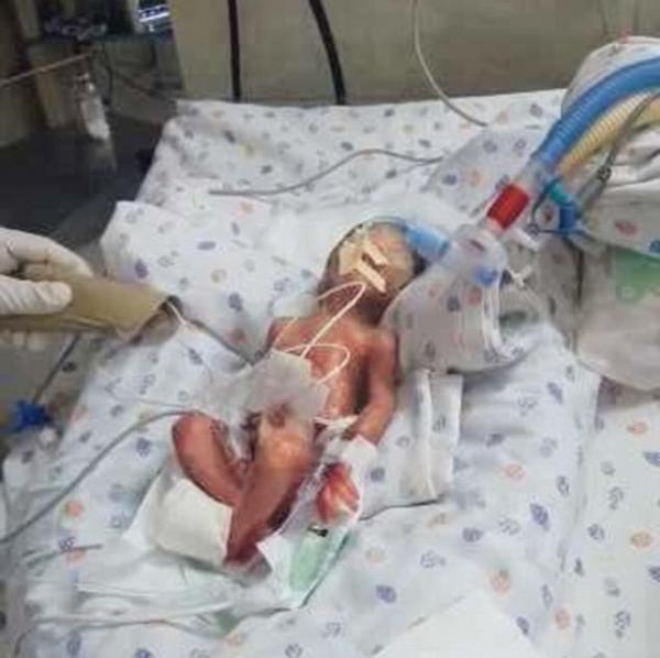 """印""""死亡""""男婴被送往墓地途中竟还有呼吸"""