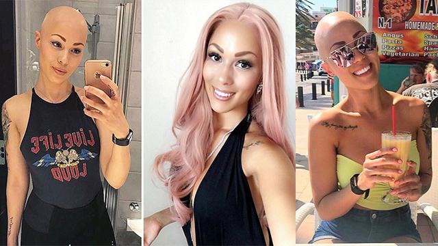 瑞典26岁秃头症女子亮出自我变身模特