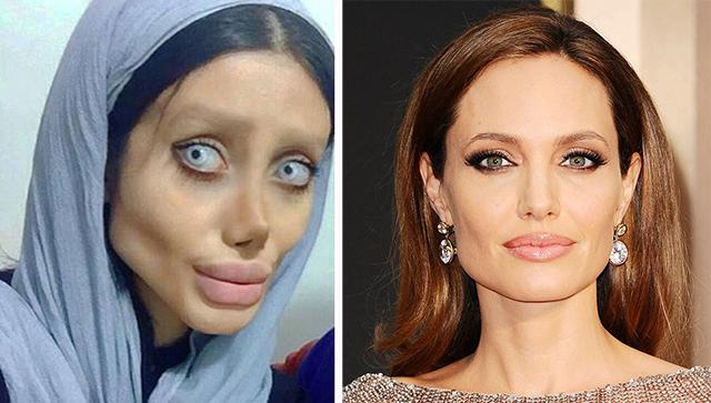 伊朗女子整容50次只为拥有偶像安吉莉娜?朱莉容貌